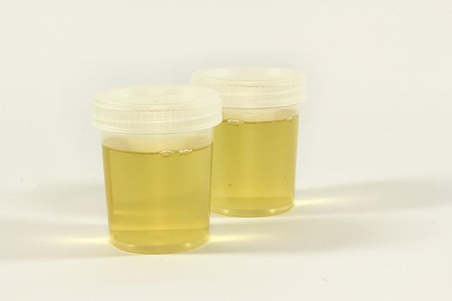 Urin, Urinprobe im Urinbecher